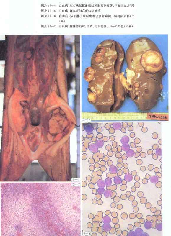 李丽娜非诚勿扰视频_附红细胞体病_猪附红细胞体病_附红细胞体_猪附红细胞体